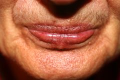 Lips with lowered corners. Wrinkles on the lips. Nasolabial folds Royalty Free Stock Image