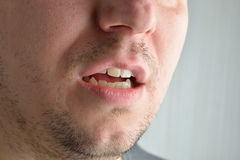 Lips, short beard of a young man. Concept photo of male sexualit Royalty Free Stock Photography