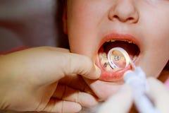 Liten flickasitts i dentist&en x27; s-kontor royaltyfria foton