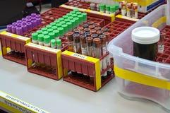 Liten medicinflaska av blod som ska bearbetas på labbet Arkivbilder