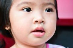 Litet asiatiskt barn som är sjukt med att nysa för influensa Closeupöga Arkivfoton