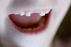 Litet barn som ler missande Front Tooth Royaltyfri Fotografi