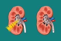 Lithotripsy en piedras de riñón Foto de archivo libre de regalías