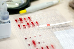 Litmus strip on pallets with the blood to determine the Rh factor. Stock Images