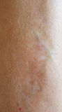 Litteken op huid Stock Foto