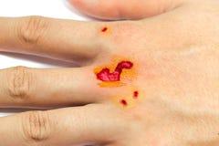 Littekenwond van handverwonding op witte achtergrond wordt geïsoleerd die Royalty-vrije Stock Foto