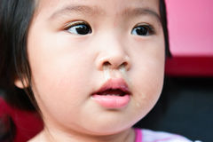 Little Asian child sick with flu sneezing. Closeup eye. Stock Photos