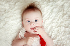 Little  baby girl with Downs Syndrome Stock Image