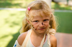 Little blond girl with broken hand and face painting Royalty Free Stock Photography