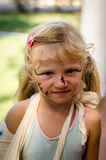 Little blond girl with broken hand and face painting. Lovely blond girl with broken hand and face painting Royalty Free Stock Photography