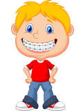 Little boy with brackets Royalty Free Stock Photo