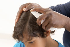 Little boy Head Lice Treatment Royalty Free Stock Photos