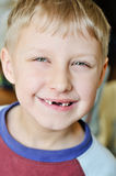 Little boy lost milk tooth. Little boy showing that he lost milk tooth Royalty Free Stock Images
