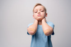 Little boy with patches on elbows Royalty Free Stock Photography