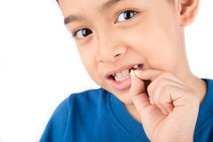 Little boy showing baby teeth toothless close up waiting for new teeth. Little boy showing baby teeth toothless waiting for new teeth Royalty Free Stock Images