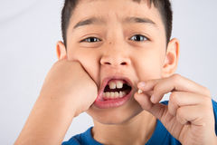 Little boy showing baby teeth toothless close up waiting for new teeth. Little boy showing baby teeth toothless waiting for new teeth Stock Images