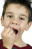 Little boy shows a broken tooth Stock Images