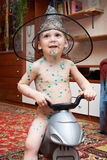 Little boy is sick with chickenpox on bicycle Stock Photography