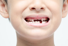 Little boy smiling show toothless dental care. Close up Stock Images