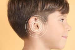Little boy with symptom of hearing loss. On color background. Medical test royalty free stock photo