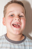 Little boy with a torn front first milk tooth Stock Images