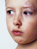 Little boy whipped close up Royalty Free Stock Image