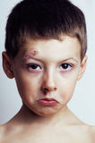 Little boy whipped close up Stock Photography