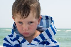 Little cute kid hurt and pouted, disappointed. Beautiful little kid with atopic dermatitis on the background of the sea,. Little cute kid hurt and pouted stock photo