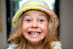 Little funny girl with retainer Royalty Free Stock Image