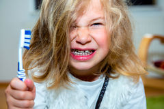 Little funny girl with retainer and toothbrush Royalty Free Stock Photos