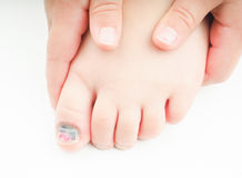 Little girl with a blue nail on hallux toe. Little girl holding onto  her foot with an injured big toe, showing blue nail on the hallux, with a tiny bit of pink Stock Images