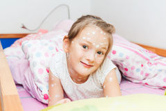 Little girl with chicken pox Stock Photos