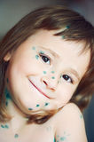 Little girl with chickenpox Stock Image