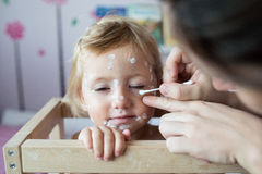 Little girl with chickenpox, antiseptic cream applied to the ras Stock Photo