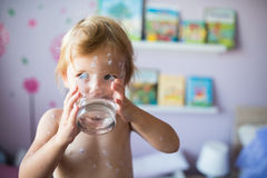 Little girl with chickenpox, drinking water from glass. Little two year old girl at home sick with chickenpox, white antiseptic cream applied to the rash royalty free stock photos