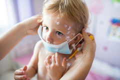 Little girl with chickenpox, mother giving her protective mask Stock Image
