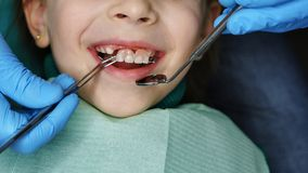 Little girl at dentist on examination. Little girl on examination at dentist. She opened her mouth and smiles. Dentist takes out denture of upper teeth. Baby stock photo
