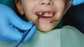 Little girl at dentist on examination. Little girl on examination at dentist. She opened her mouth and smiles. Dentist takes out denture of upper teeth. Close royalty free stock images