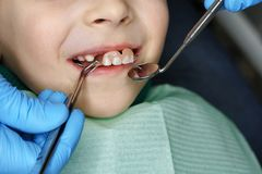 Little girl at dentist on examination. Little girl on examination at dentist. She opened her mouth and smiles. Dentist takes out denture of upper teeth with stock photos
