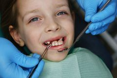 Little girl at dentist on examination. Little girl on examination at dentist. She opened her mouth and smiles. Dentist takes out denture of upper teeth with royalty free stock image