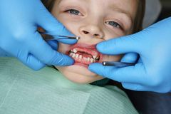 Little girl at dentist on examination. Little girl on examination at dentist. She opened her mouth wide. Dentist examines milk teeth. Four upper teeth are royalty free stock images