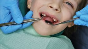 Little girl at dentist on examination. Little girl on examination at dentist. She opened her mouth wide. Dentist examines upper canines. Incisor teeth are royalty free stock photos