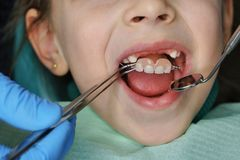 Little girl at dentist on examination. Little girl on examination at dentist. She opened her mouth wide. Dentist puts on denture. Four upper teeth are missing royalty free stock photography