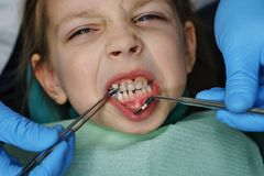 Little girl at dentist on examination. Little girl on examination at dentist. She opened her mouth wide. Dentist puts denture. Four upper teeth are missing from stock image