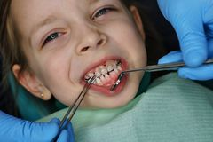 Little girl at dentist on examination. Little girl on examination at dentist. She opened her mouth wide. Dentist puts on denture. Four upper teeth are missing royalty free stock photo