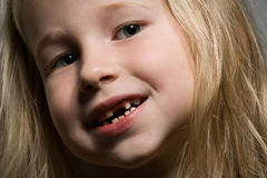 Little girl without a front tooth Stock Photos