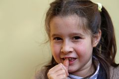 Little girl with the front tooth dangles Stock Images