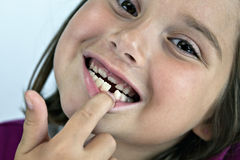 Little girl with lost tooth Stock Images