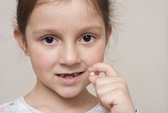 Little girl and a milk tooth stock photography