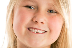 Little girl with missing teeth. The little girl with missing teeth Royalty Free Stock Images
